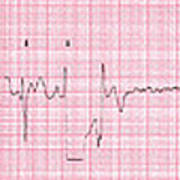 Cardioversion, 1 Of 2 Poster