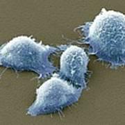 Cervical Cancer Cells, Sem Poster by Steve Gschmeissner