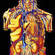 Colour Artwork Of Abdominal & Thoracic Nerves Poster