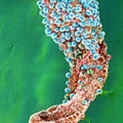 Colour Sem: Malaria Oocysts On Stomach Of Mosquito Poster