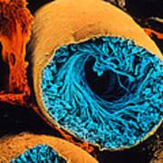 Colour Sem Of Seminiferous Tubule Of The Testis Poster