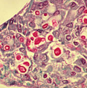 Cryptococcosis, Lm Poster