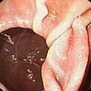 Diverticulum In The Duodenum Poster by Gastrolab