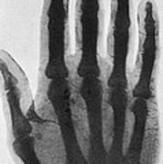 Early X-ray, 1897 Poster