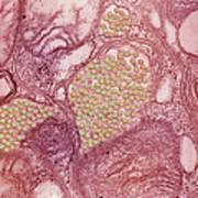 Eastern Equine Encephalitis Virus Poster