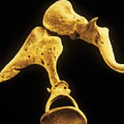 False-colour Sem Of The Bones Of The Middle Ear Poster