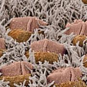 Foetal Inner Ear Hair Cells, Sem Poster