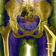 Fractured Femur Poster