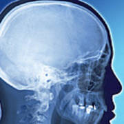 Healthy Skull, Coloured X-ray Poster