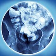 Healthy Small Intestine, Barium Enema Poster
