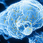 Hiv-1 Infected T4 Lymphocyte Sem Poster by Science Source