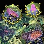 Hiv Three Sectioned Virions On Black Poster