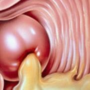 Illustration Of Gonorrhoea Of The Cervix Poster