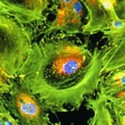 Immunofluorescent Lm Of Kidney Cancer Cells Poster