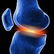 Inflamed Knee Cartilage, Computer Artwork Poster
