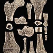 Inner Structure Of Bones Poster