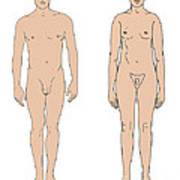 Klinefelters Syndrome Amp Healthy Male Photograph By Science Source