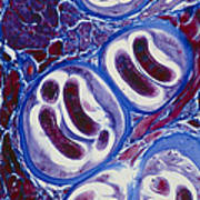 Lm Of Trichina Larvae Encysted In Muscle Tissue Poster