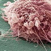 Migrating Breast Cancer Cell, Sem Poster