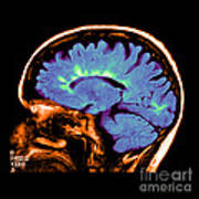 Mri Of Multiple Sclerosis Poster
