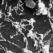 Mycoplasma Pneumoniae Sem Poster