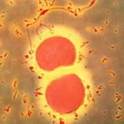 Neisseria Meningitidis Bacteria Poster by A. Dowsett, Health Protection Agency