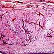 Ovary Tissue, Light Micrograph Poster by Dr Keith Wheeler