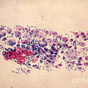 Pap Smear, Parabasal Cells Poster by Science Source