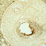 Schistosoma Mansoni Poster