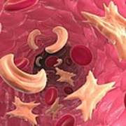 Sickle Cell Anaemia, Artwork Poster by David Mack