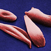 Sickle Red Blood Cells Poster