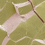 Skeletal Muscle Fibres, Sem Poster