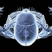 Skeleton From Above, X-ray Artwork Poster