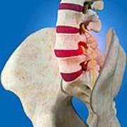 Slipped Intervertebral Disc, Artwork Poster