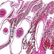 Tapeworm-infected Pork, Light Micrograph Poster by Dr Keith Wheeler