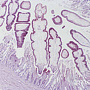 Tapeworms In Whale Intestine Lm Poster