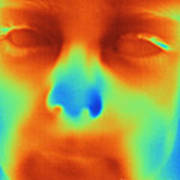 Thermogram Of A Boys Face Poster