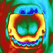 Thermogram Of A Woman's Mouth And Teeth Poster
