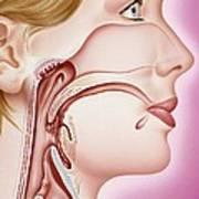 Upper Respiratory Tract, Artwork Poster