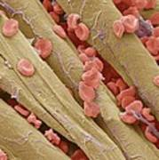 Used Surgical Swab, Sem Poster