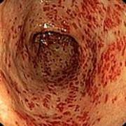 Vascular Ectasia In The Stomach Poster