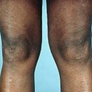 View Of Knees Affected By Osteoarthritis Poster