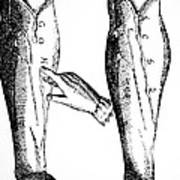 William Harvey Woodcut Showing Venous Valves Poster