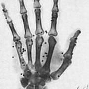 X-ray Of A Hand With Buckshot Poster