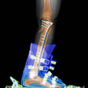 X-ray Of Broken Bones In Ski Boot Poster