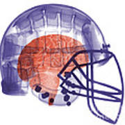 X-ray Of Head In Football Helmet Poster