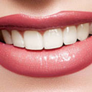 Esthetics Of Smile  Dental Veneers Vs Orthodontic Treatment Poster