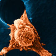 Metastasis Poster by Science Source