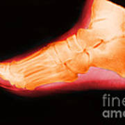 Right Foot Poster