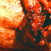 Blocked Artery. Poster